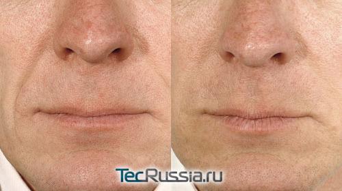 фото до и после коррекции носогубных складок (использован Belotero)