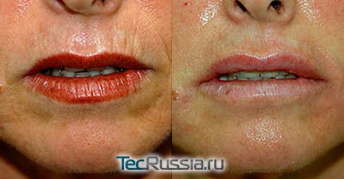 омоложение области губ с помощью газожидкостного пилинга