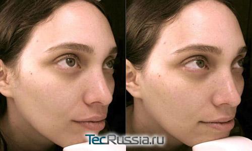 процедура Jet Peel по лицу – фото до и после