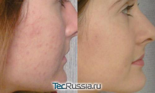 Лечение прыщей Зеркалином – фото до и после