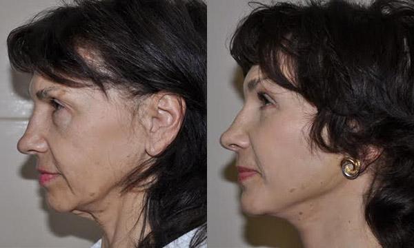 Фото до и после подтяжки лица, хирург Шиъирман Э.В.