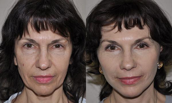 Фото до и после комплексного лифтинга лица