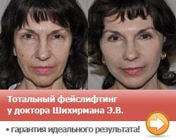 Подтяжка лица у пластического хирурга Шихирмана Э.В.