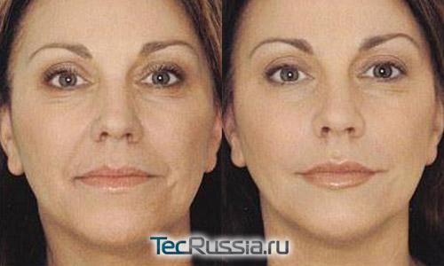 фото до и после мезолифтинга лица