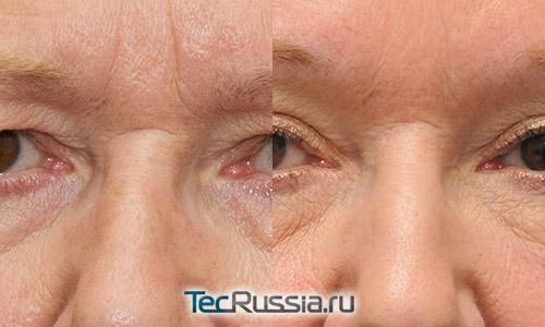 фото до и после подтяжки верхней трети лица