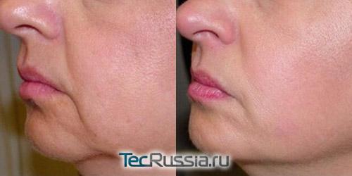 фото до и после липолитической терапии лица