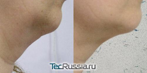 фото до и после уколов для похудения шеи