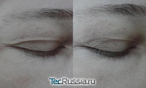 инъекции Aquashine для омоложения кожи – фото до и после