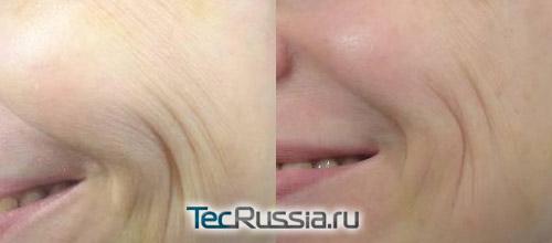 фото до и после биоревитализации Аквашайном