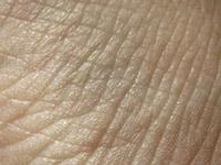Морщины лица и шеи классификация