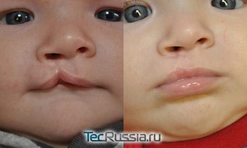 ребенок с односторонним расщеплением губы – фото до и после операции