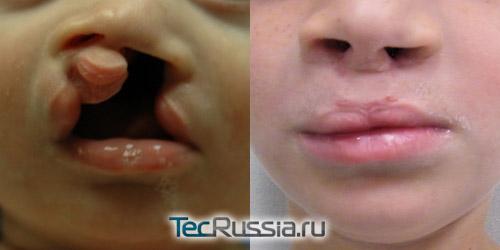 фото до и после операции по удалению заячьей губы
