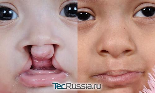 фото до и после пластики заячьей губы