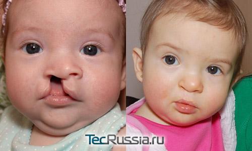 результаты коррекции расщепления губы у ребенка