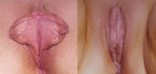 vlagalisha-plasticheskaya-hirurgiya