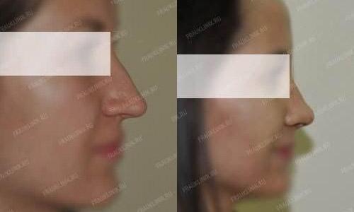 Ринопластика лучшие хирурги петербурга