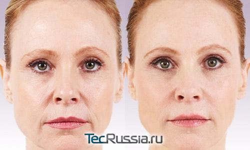 биоармирование лица – фото до и после