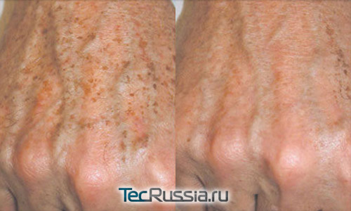 коррекция пигментации кистей рук с помощью фотоомоложения
