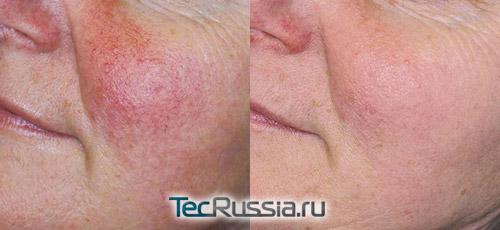 результаты фотоомоложения кожи лица с куперозом