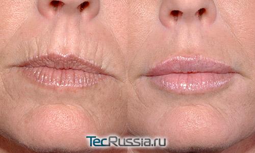 Морщины на верхней губе как избавиться косметология