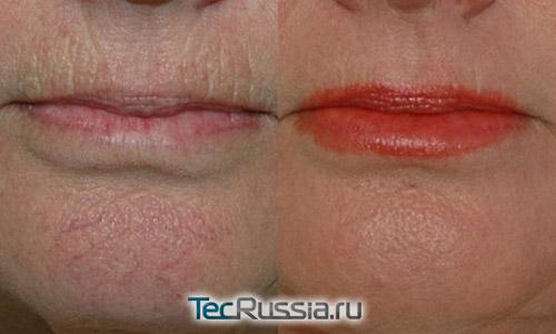 Удаление морщин над верхней губой филлером Ювидерм, фото до и после