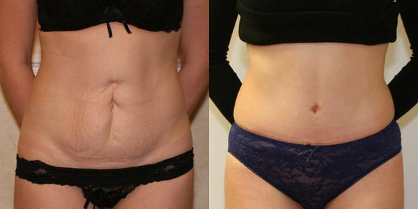 До и после пластики живота, вид спереди, хирург Маланичев