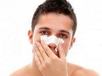 Как исправить нос после перелома?