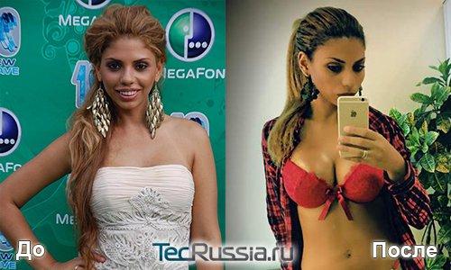Певица Габриэлла до и после увеличения груди