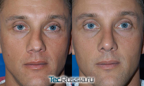 результаты пластической операции после перелома носа