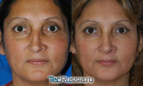 фото до и после ринопластики носа в результате перелома