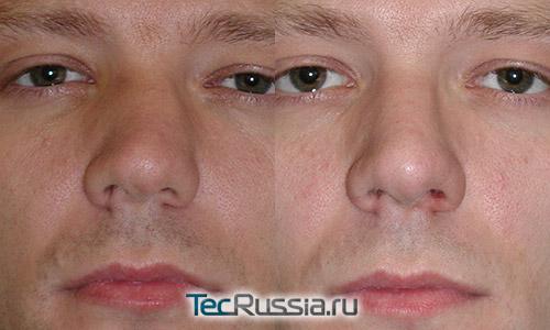 до и после хирургической коррекции сломанного носа