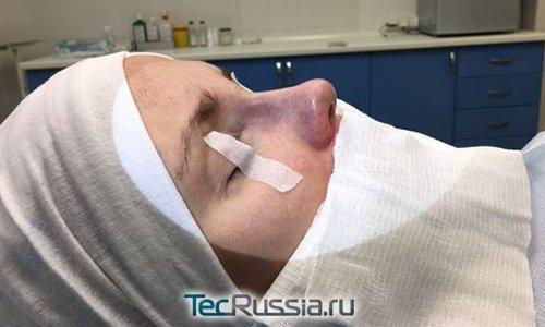 нос Кати Гордон после ринопластики