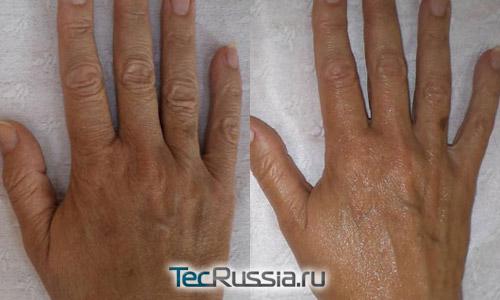 омоложение кожи на кистях рук с помощью филлера Reneall