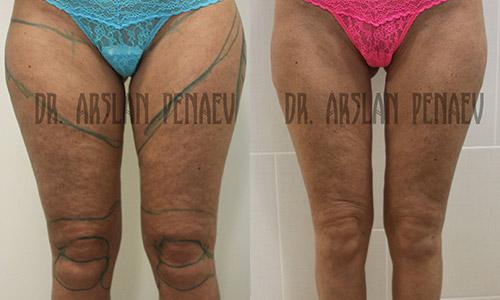 фото до и после васер-липосакции у доктора Пенаева