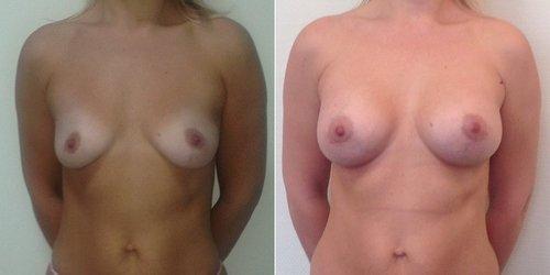 Фото до и после увеличения груди, хирург – Светлана Пшонкина