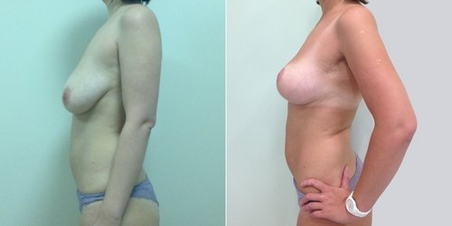 Результаты операции по программе Ideal Breast у Светланы Пшонкиной