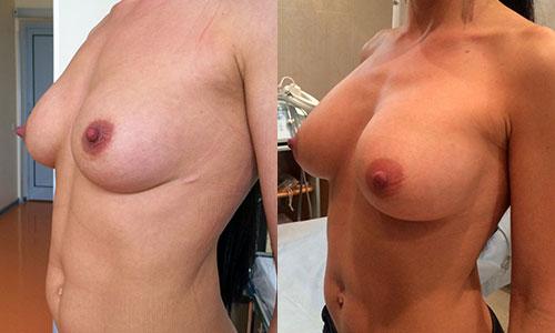 пластика груди имплантами, фото до и после
