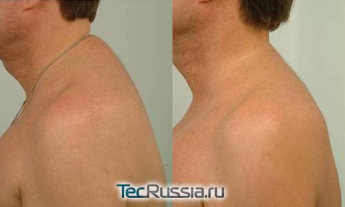 хирургическое удаление жировых отложений на шее
