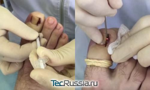 введение анестетика и лазерное удаление грануляционной ткани около вросшего ногтя