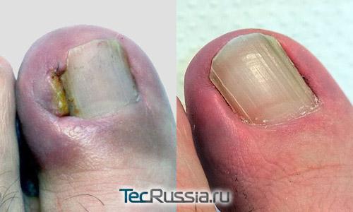 ноготь до и после лазерной коррекции онихокриптоза