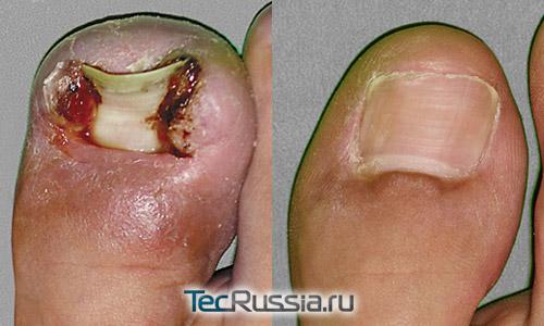 сложный случай удаления вросшего ногтя – до и после операции