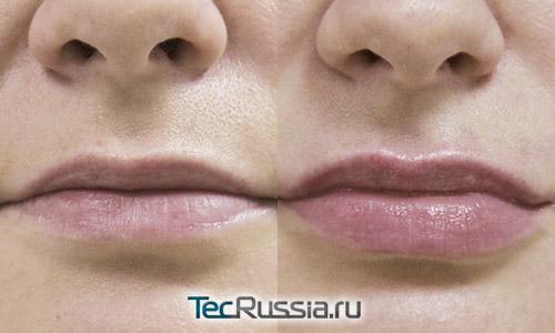 Увеличение губ филлером Ивор Волюм
