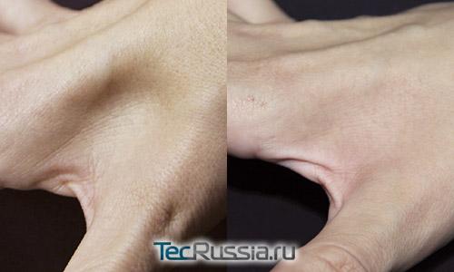 кожа до и после 3-месячного курса