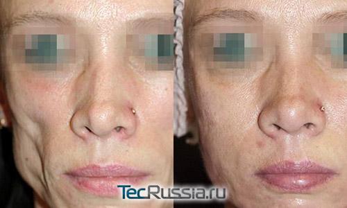 состояние кожи до и после использования Дифферина