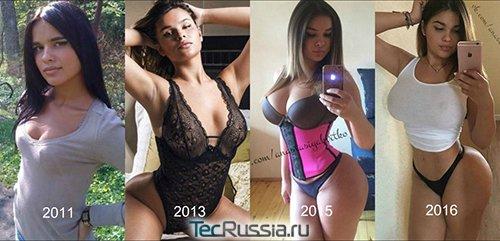 Анастасия Квитко до и после увеличения груди