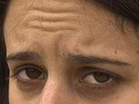 Шишки после ботокса: осложнение или норма?