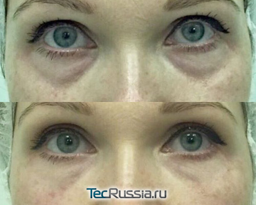 до и после удаления синяков под глазами препаратом Bellcontour Meso