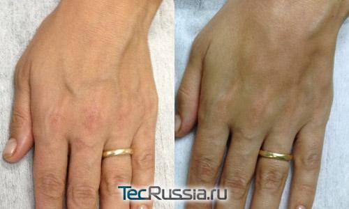 фото до и после омоложения кистей рук с помощью Bellcontour