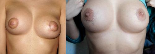 асимметричное расположение имплантов