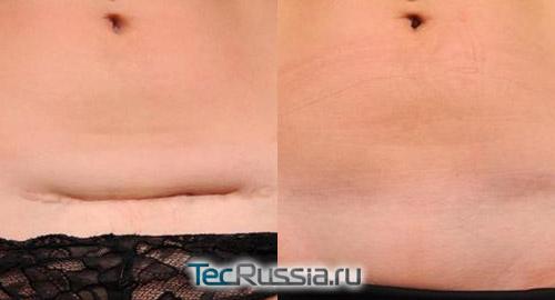 хирургическое лечение шрама на животе